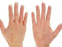Da tay khô - nổi ám ảnh của mọi người